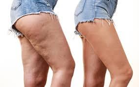 Dieta e cellulite: un problema di infiammazione